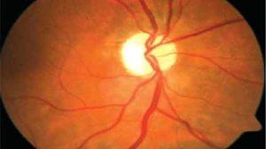 neuropatia óptica hereditária
