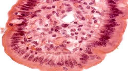 frouxo fibroso cartilaginoso