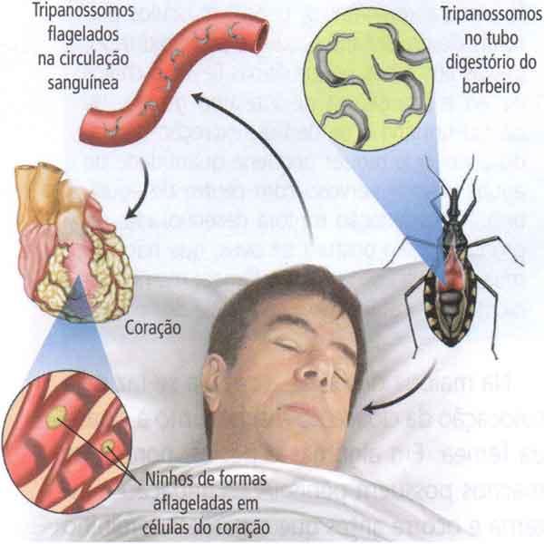 Parasitismo, parasitoses, parasitas e hospedeiros