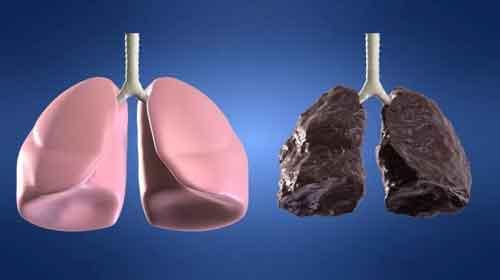 comparação pulmão cigarro