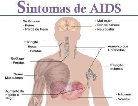 Sinais de infecção por hiv aids