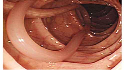 lombriga no intestino