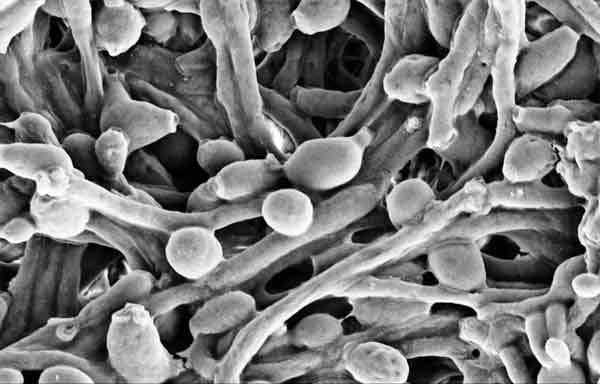 Foto de Cândida: O que é, sintomas e tratamentos, fotos, imagens – Candida albicans