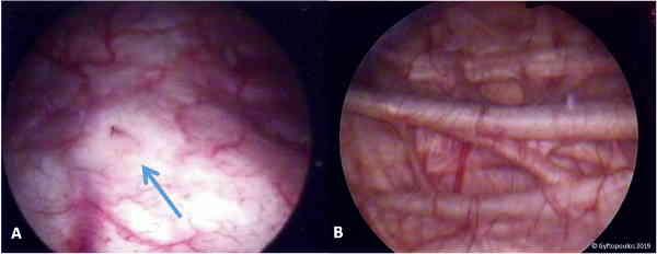 Fig 3 - Vista endoscópica da bexiga. (A) Trígono e orifício ureteral direito. (B) Trabéculas proeminentes da parede da bexiga (fibras hipertróficas do músculo detrusor).