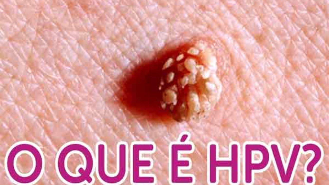 doença hpv wikipedia