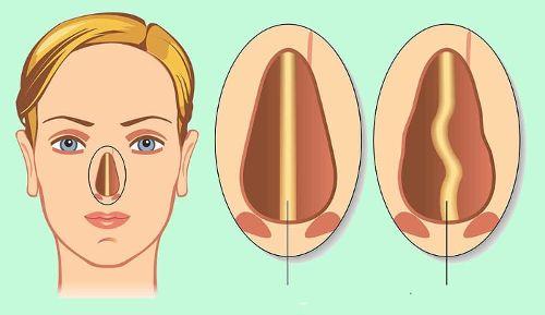 Desvio de septo nasal